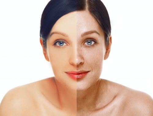 Últimas técnicas para la eliminación de manchas en la piel