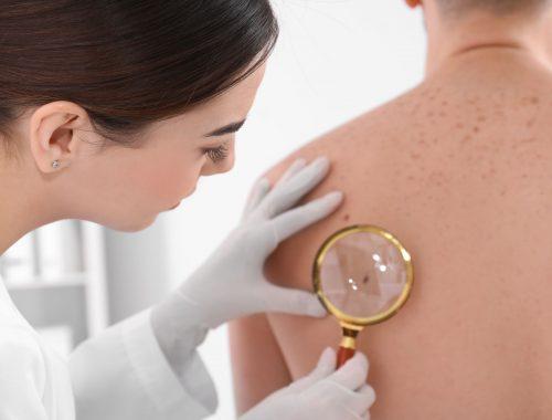 Cáncer piel prevenirlo
