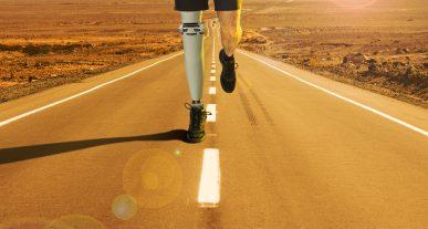Impresión de prótesis en 3D ¿Qué es y qué ventajas tienen?