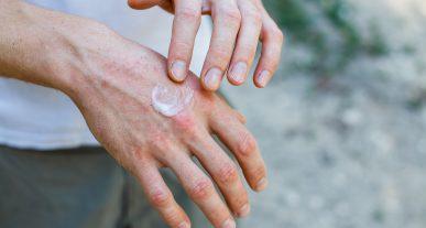 ¿Por qué los productos de limpieza contra la COVID pueden agravar las lesiones en la piel?